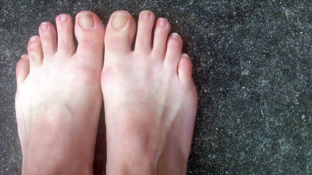 Footskin